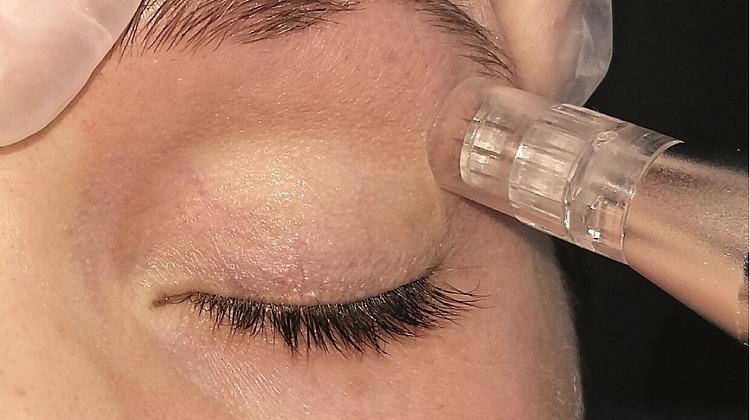 Microneedling Augenpartie