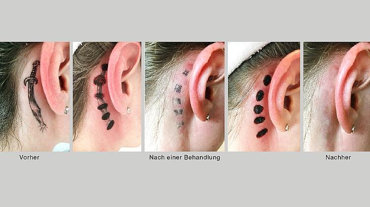 tattooentfernung ohne laser beauty forum germany. Black Bedroom Furniture Sets. Home Design Ideas