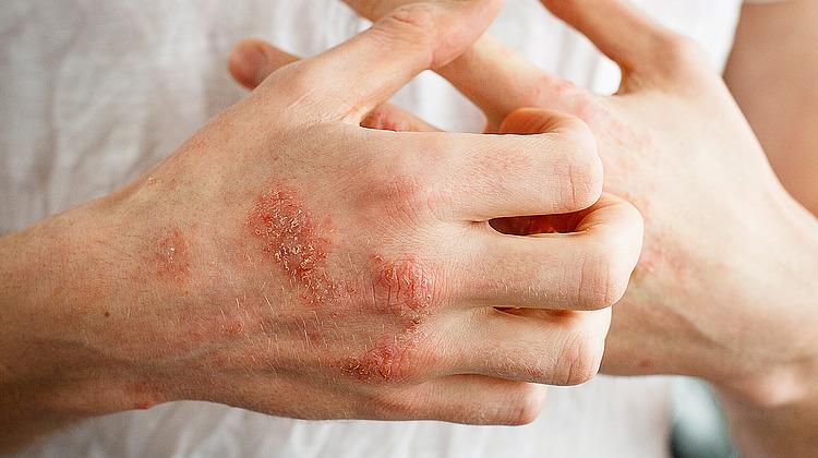 Allergisches Kontaktekzem - verbreitet und verzögert